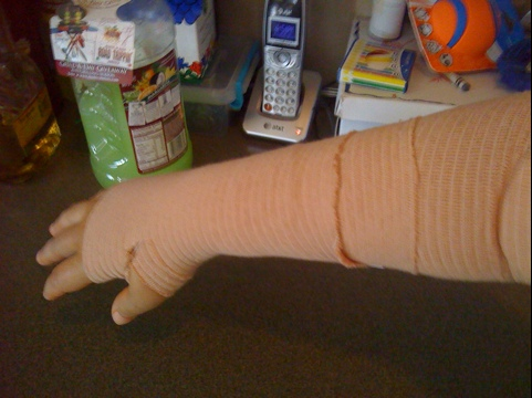 Cubital & Carpal tunnel post op day six