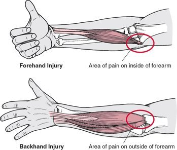 Tennis Elbow Diagram